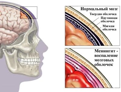 что происходит в мозгу при менингите