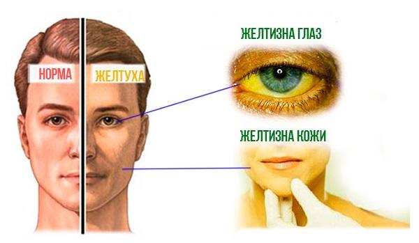 признаки гепатита А