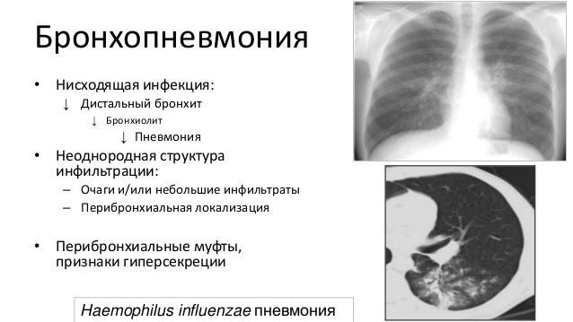 схема бронхопневмонии