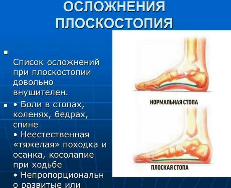 Осложнения плоскостопия