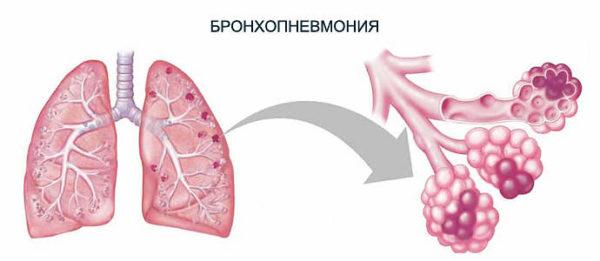 бронхопневмония у детей - схема
