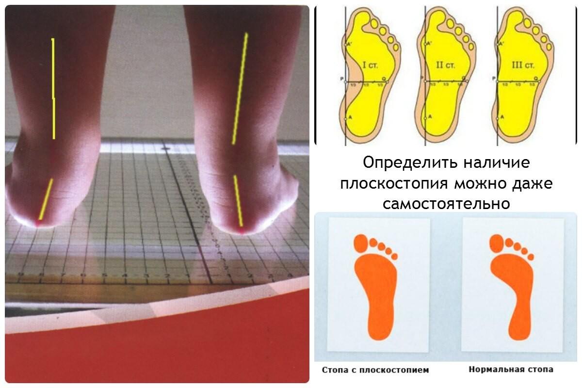 Плоскостопие и нормальная стопа у ребенка