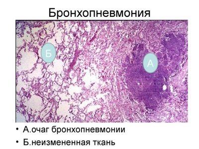 нормальная ткань и бронхопневмония на гистологическом препарате