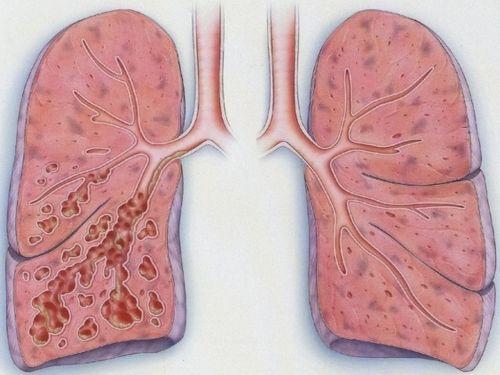 пневмония на схеме