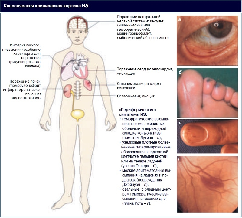 Эндокардит инфекционный - классическая клиническая картина