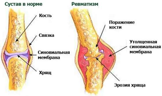 сустав при ревматизиме и здоровый сустав