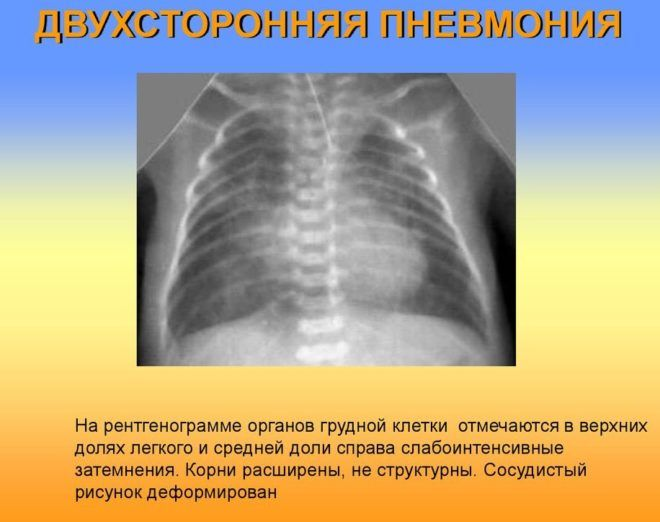 двухсторонняя пневмония у детей на рентгене