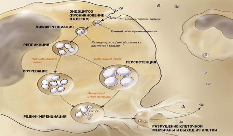 Клиническая картина. Хламидийная пневмония