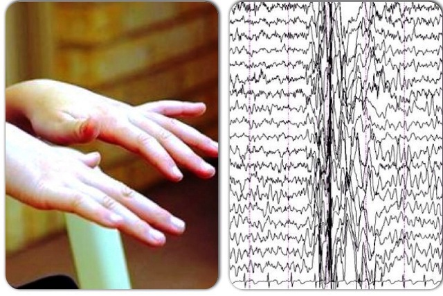 руки и диаграмма при миоклонических судорогах у ребенка