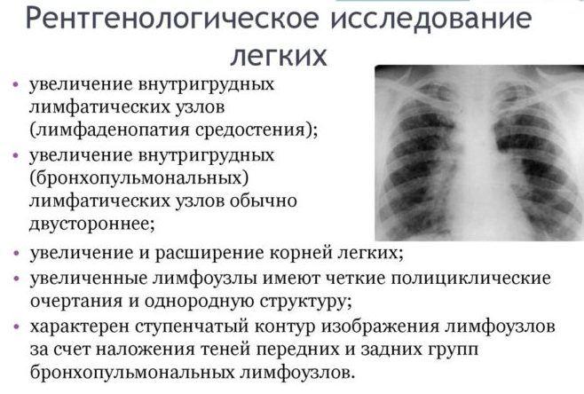 рентгенологическое исследование легких
