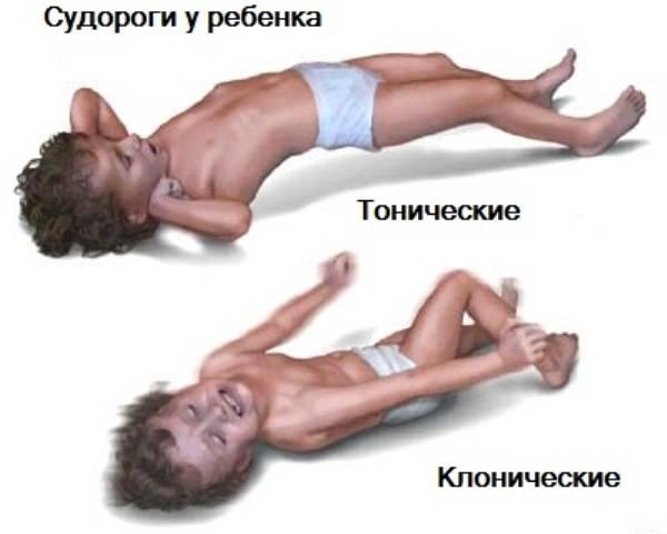 Тонические и клонические судороги у ребенка