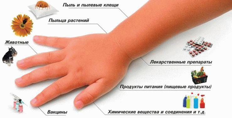 рука и причины аллергии