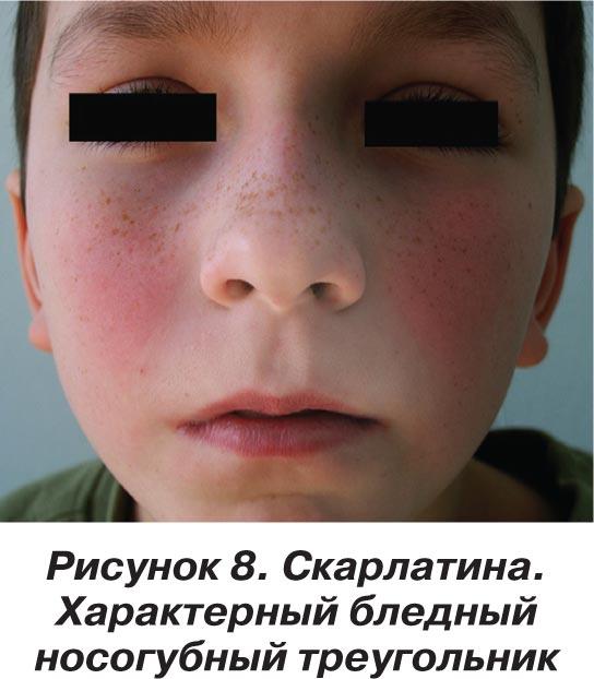 характерные проявления скарлатины у ребенка