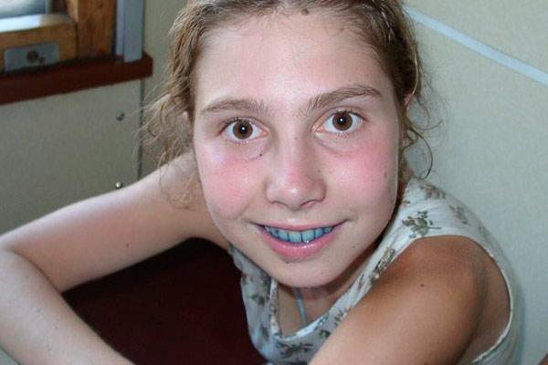 девочка с голубыми зубами