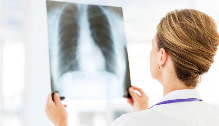 врач смотрит рентген снимок легких