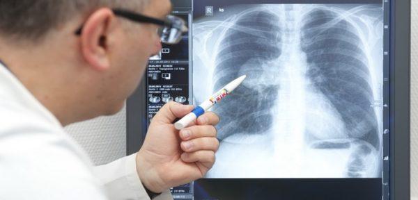 врач указывает на рентген с остаточными явлениями после пневмонии