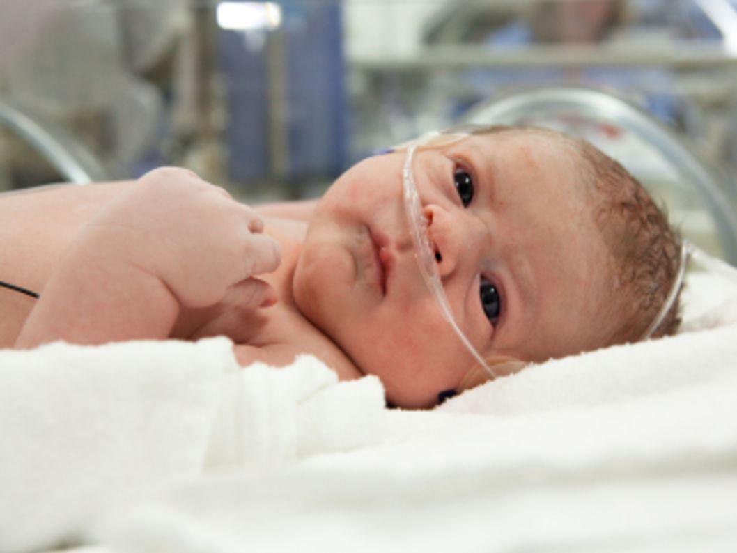 ребенок с дыхательными трубочками в носу