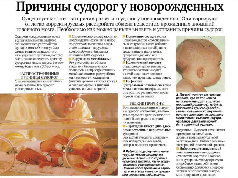 причины судорог у новорожденных