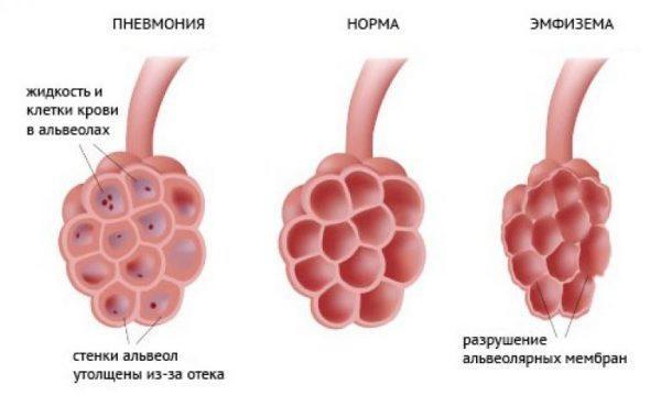 альвеолы при пневмонии, норме, эмфиземе