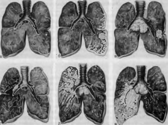 прикорневая пневмония у детей на рентгене