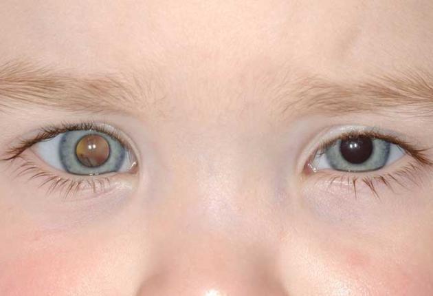 ретинобластома глаза у ребенка