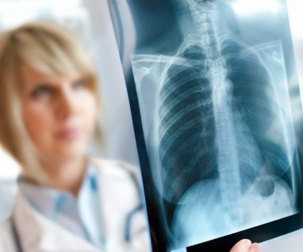Хламидийный бронхит - рентген