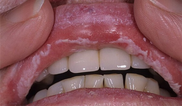 Грибковые заболевания полости рта