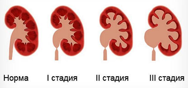 пиелоэктазия у плода - степени тяжести