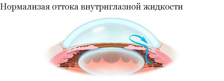 нормализация оттока внутреглазной жидкости