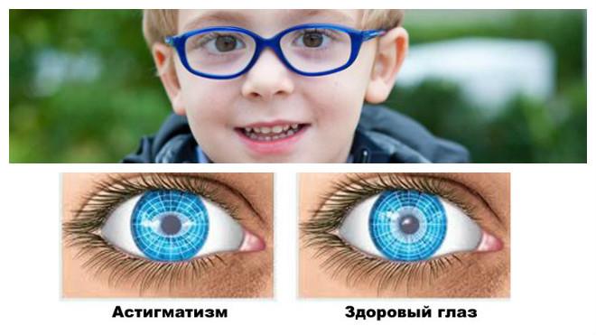ребенок в очках, нормальный глаз и с астигматизмом