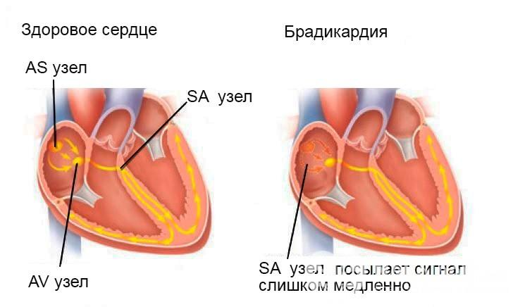 здоровое сердце и с брадикардией