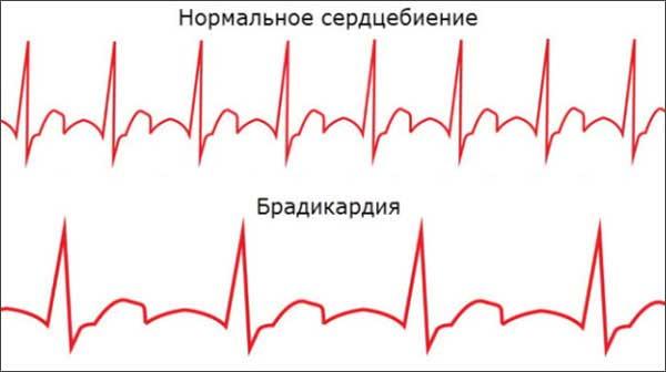 нормальное сердцебиение и брадикардия у детей