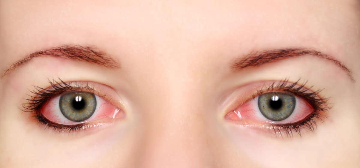 глаза с конъюктивитом
