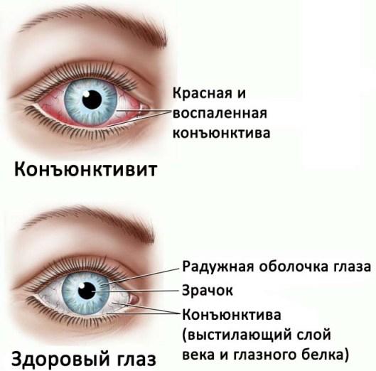 здоровый глаз и с конъюктивитом