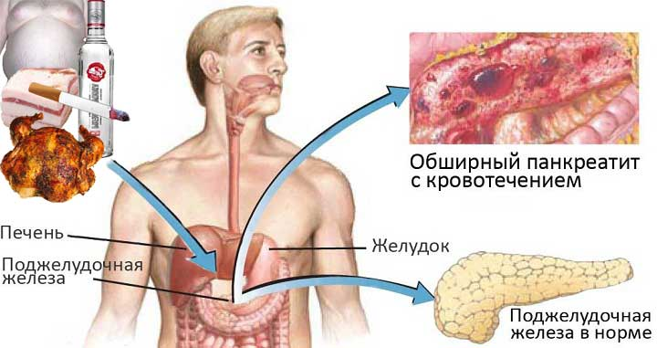 внутренние органы человека схаматично показывают что способствует проявлению панкреатита и как выглядит здоровая поджелудочная железа