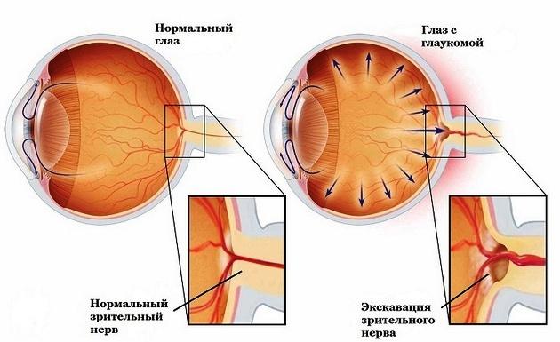 врожденная глаукома у детей - схема