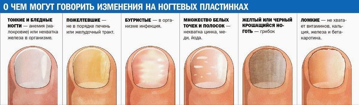 О чем говорят изменения на ногтевых пластинах