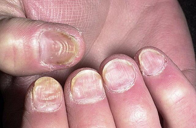 Борозда Бо Рейля (борозды Бо) на ногтях