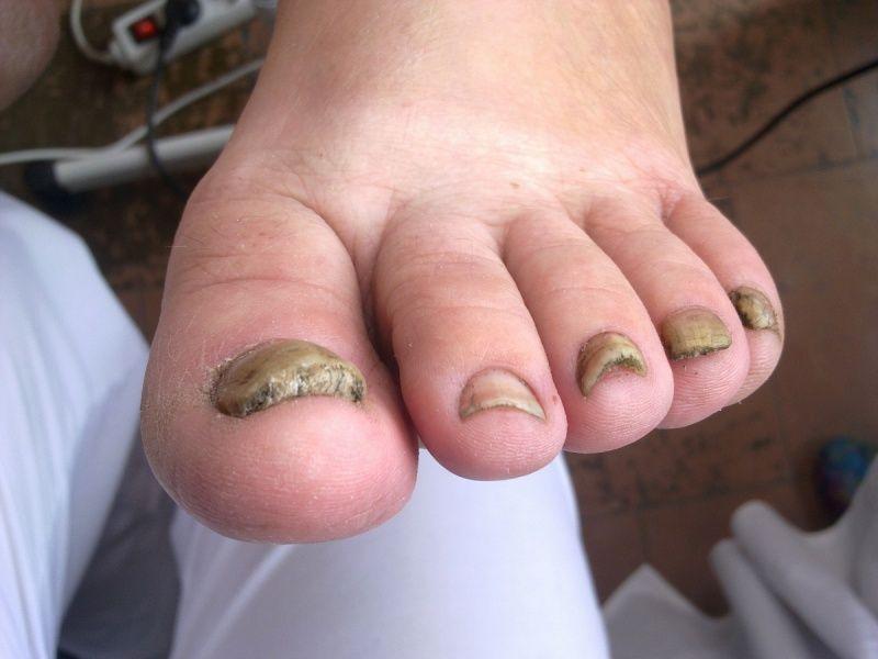 Ониходистрофия ногтей на ноге