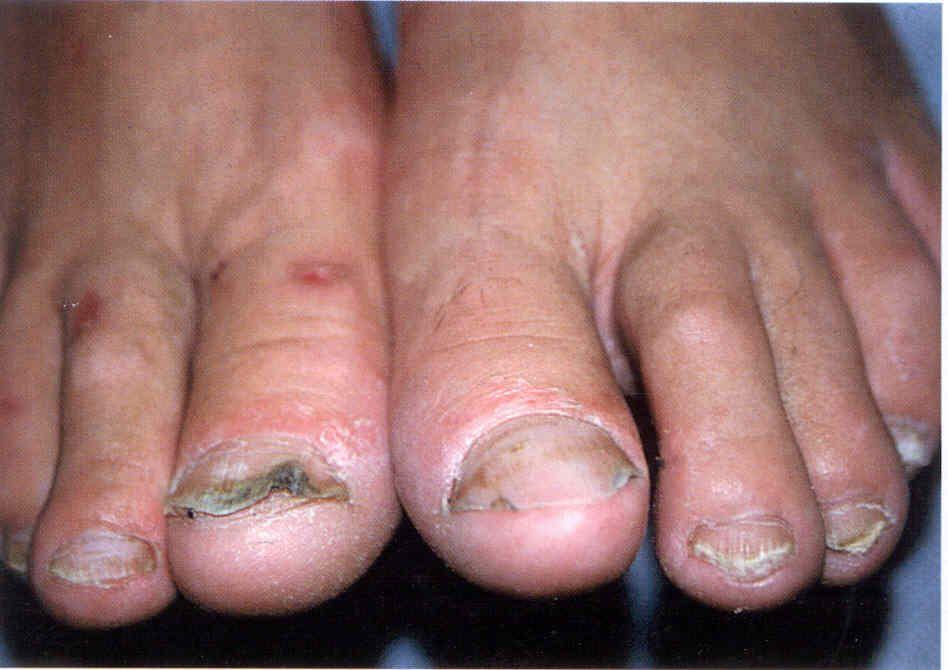 Онихомадезис на ногтях