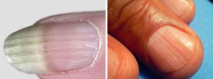 Орихорексис на ногтях