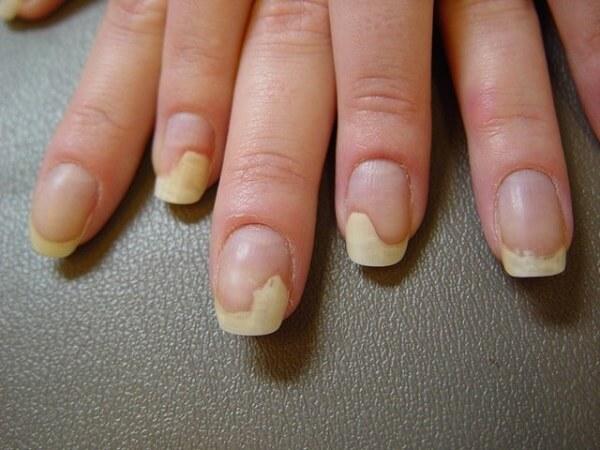 Онихолизис на ногтях