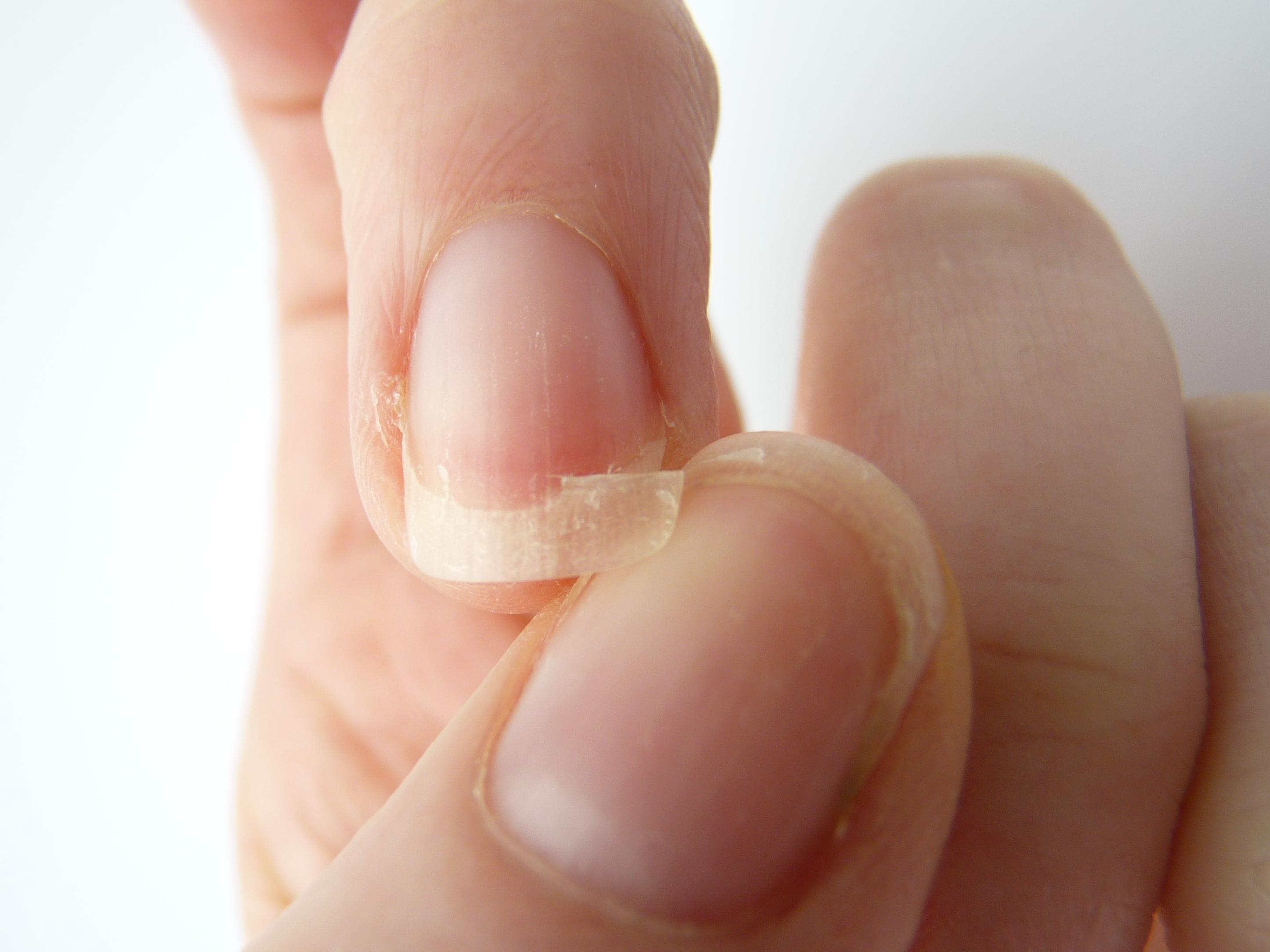 Ломкость ногтей (палец о палец ломает ноготь)