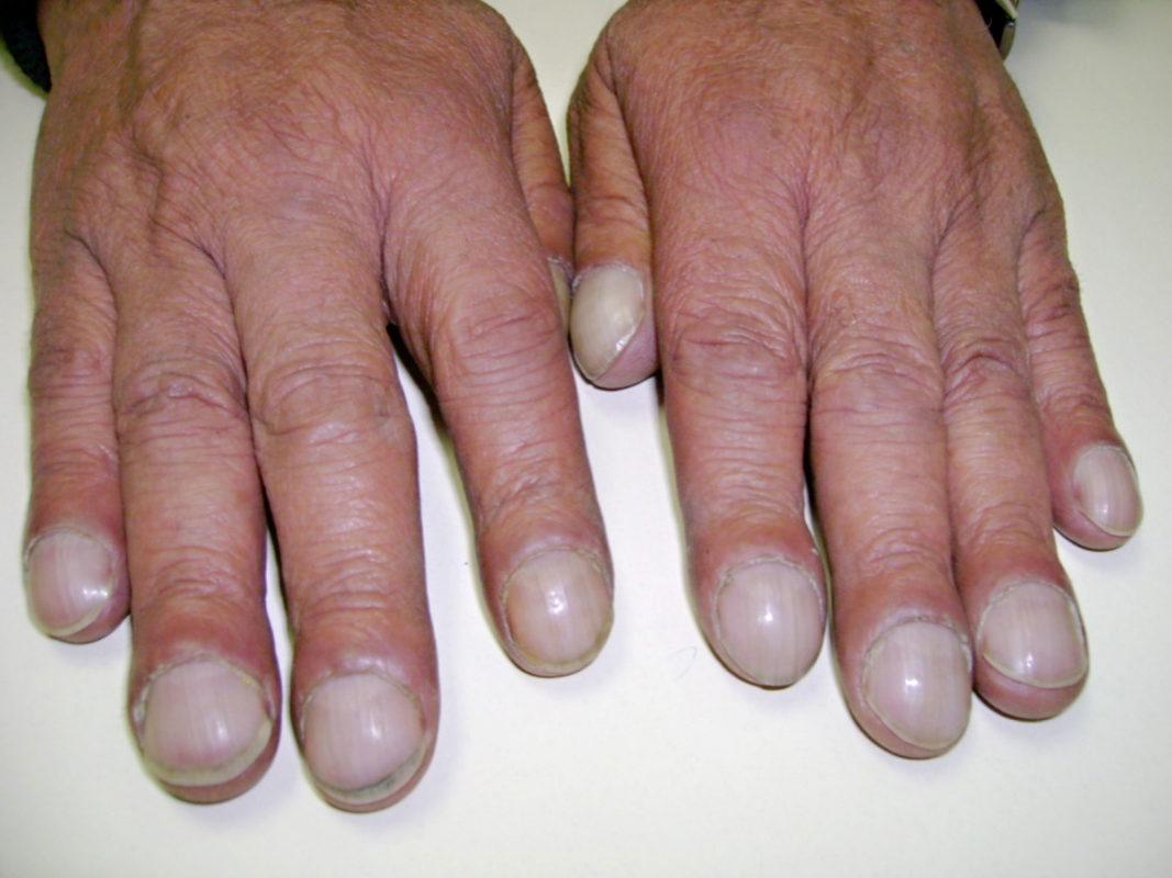 Ногти Гиппократа