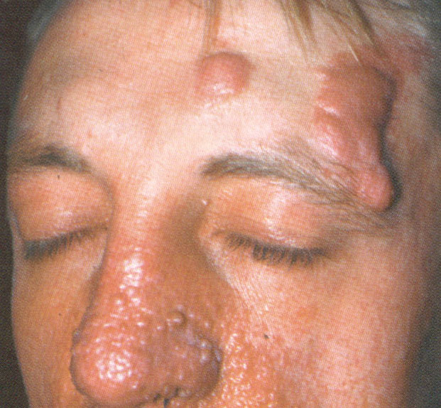 лицо больного туберозным склерозом