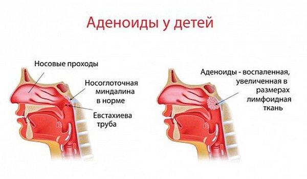 аденоиды у детей в разрезе
