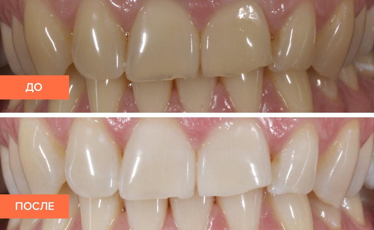 зубы до и после фторирования