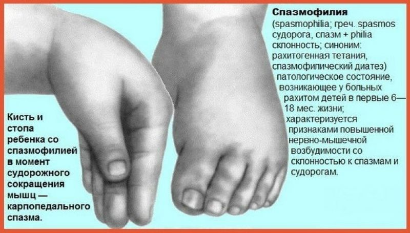 Спазмофилия: особенности заболевания