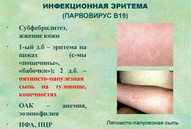 Эритема кожи: виды