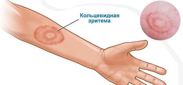 кольцевидная эритема